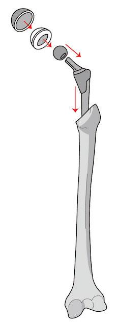 人工関節画像